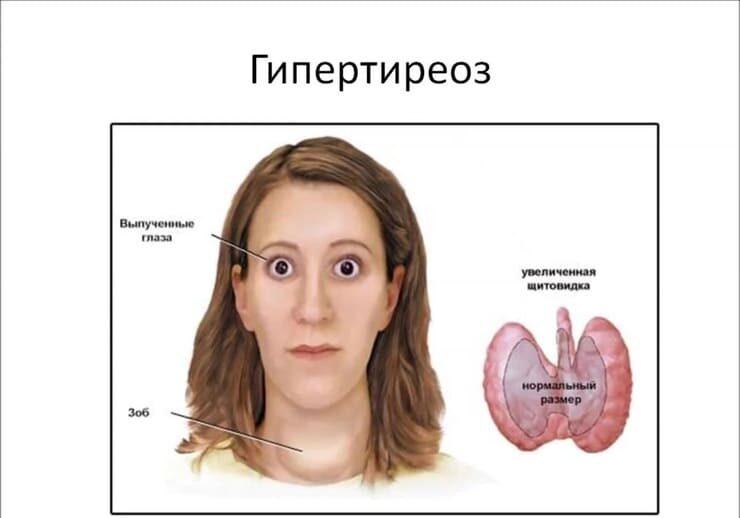 щитовидная железа симптомы заболевания у женщин внешние признаки